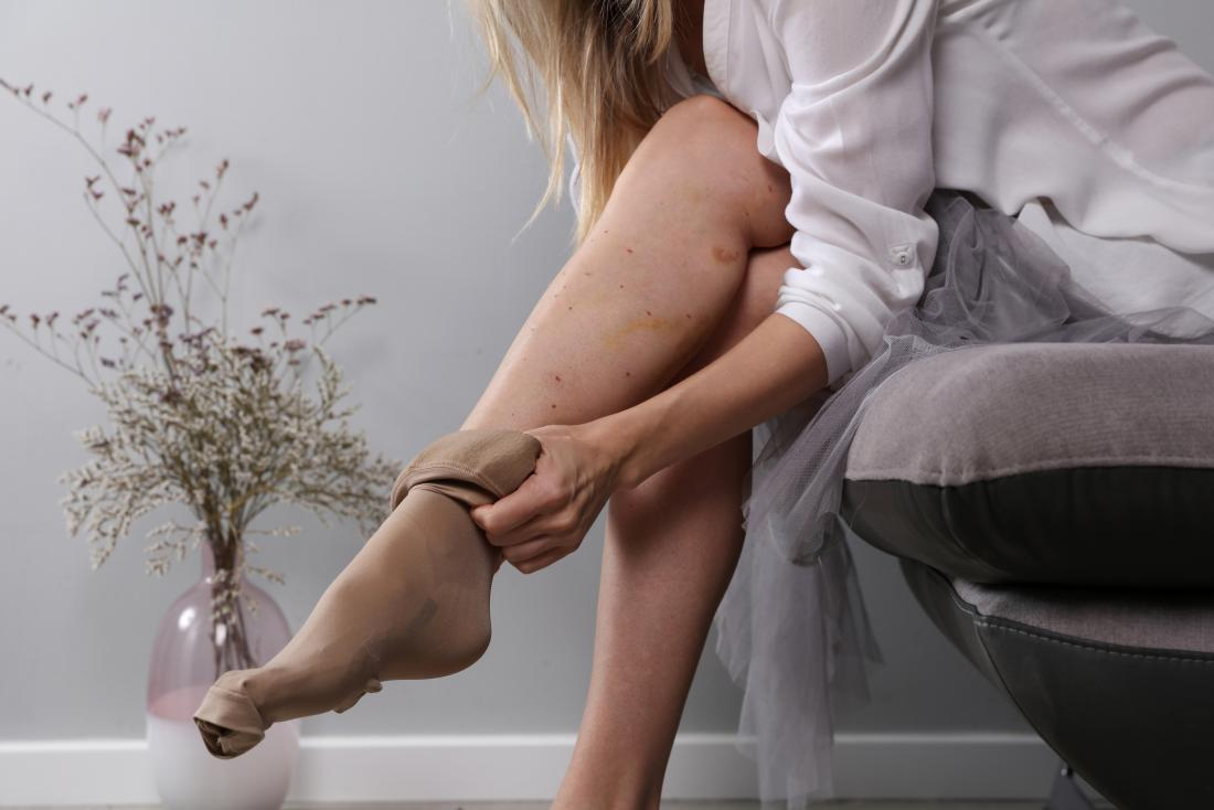 Woman putting on compression stockings