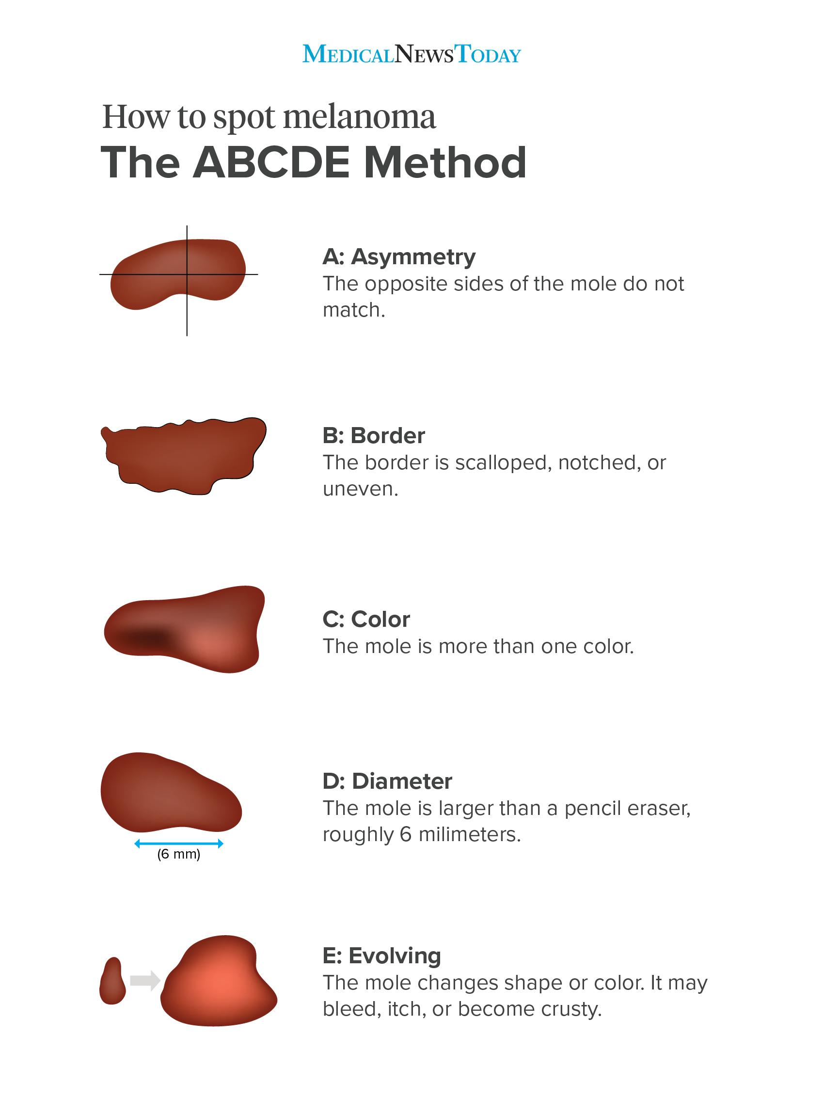 ABCDE method for spotting melanoma