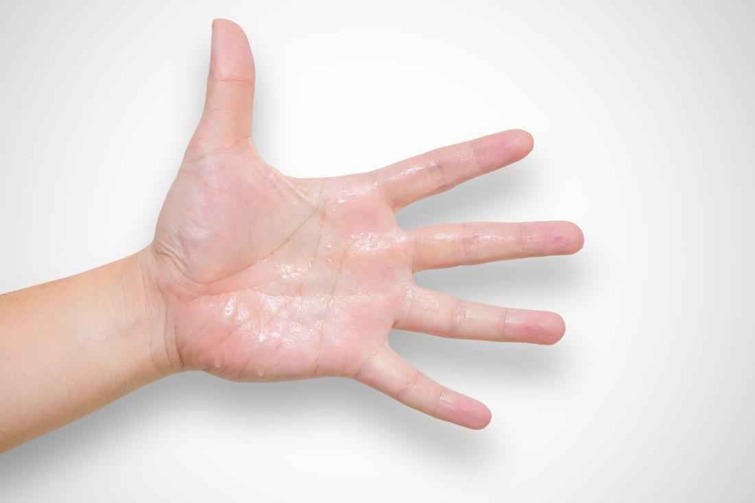 Hyperhidrosis or excessive sweating on palm of hand.