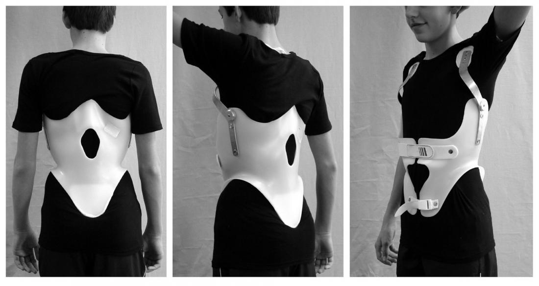 Kyphosis brace <br>Image credit: Dr. Weiß, 2010</br>
