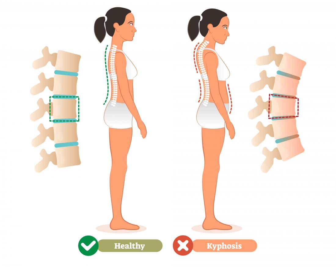 Kyphosis infographic