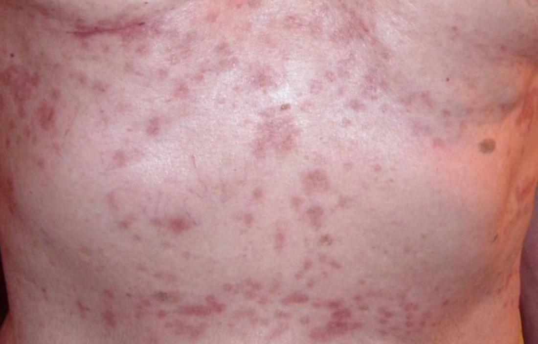Transient acantholytic dermatosis which is a papulovesicular dermatosis or papular eczema. Image credit: Tvbanfield, 2009