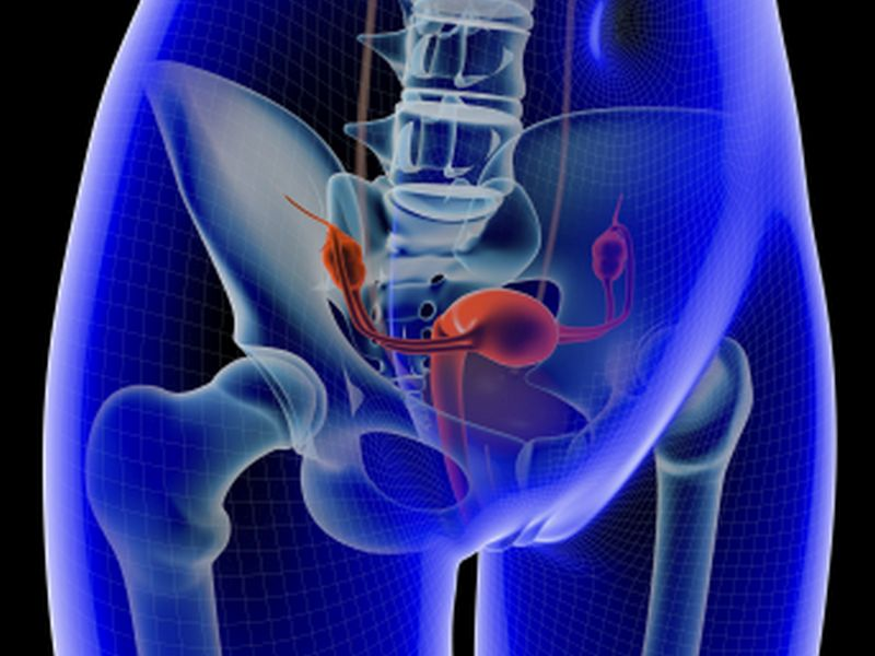 News Picture: Benign Ovarian Cysts Should Be Left in Place, Study Suggests