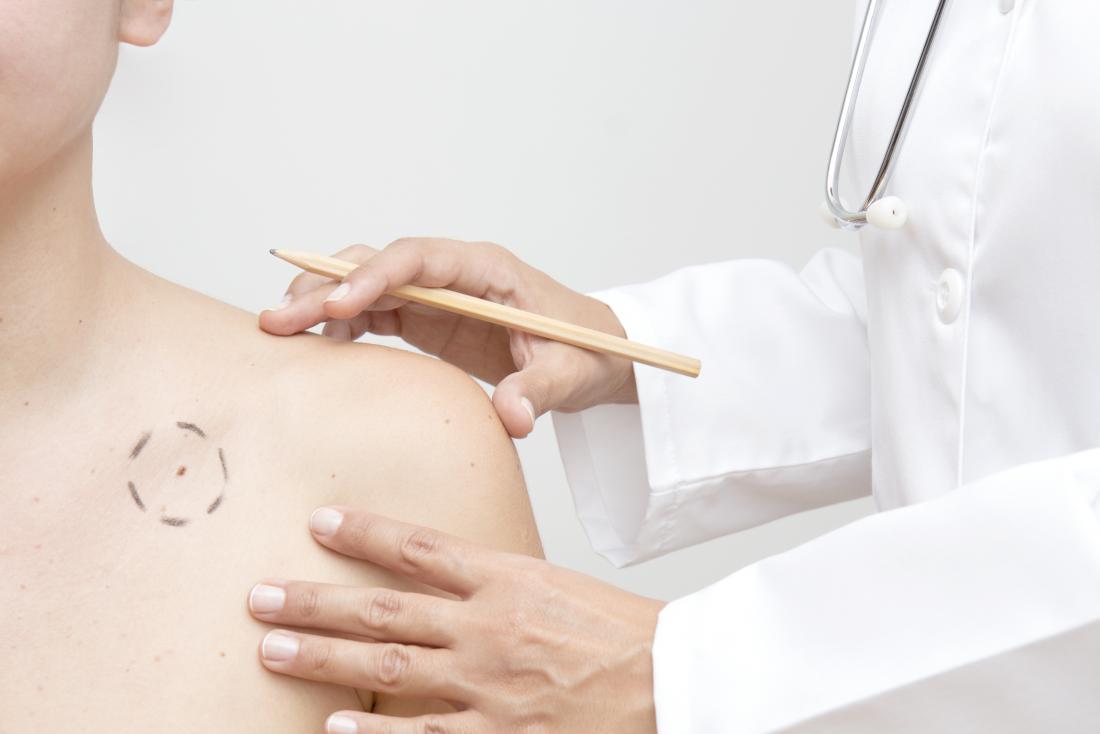 doctor examining melanoma
