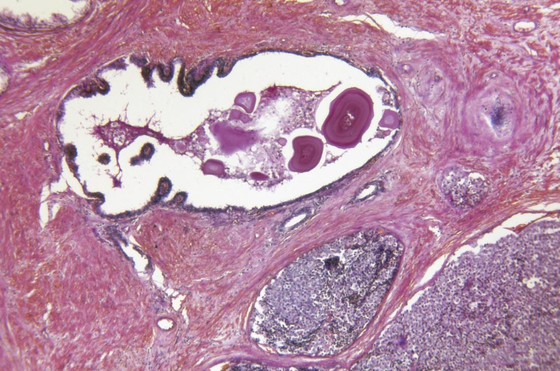 Prostate Gland Adenocarcinoma.