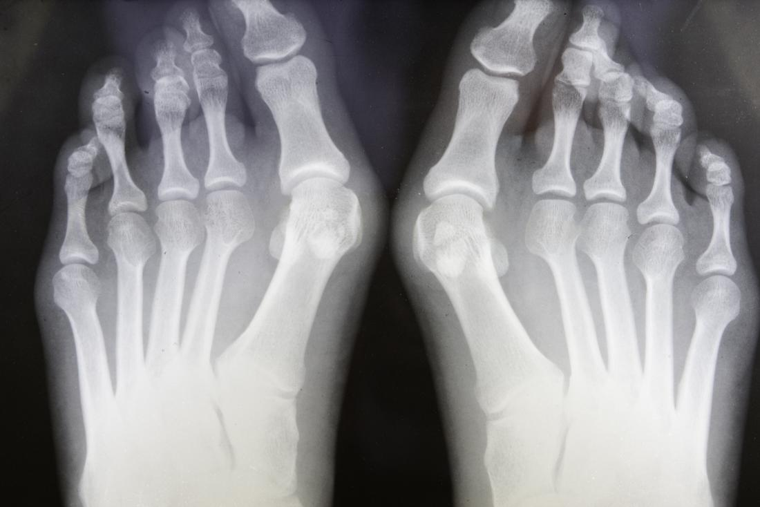 Bunions are a common complication affecting foot bones.