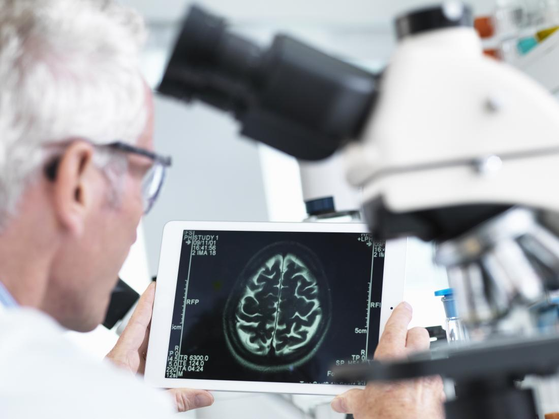 doctor analyzing brain scan