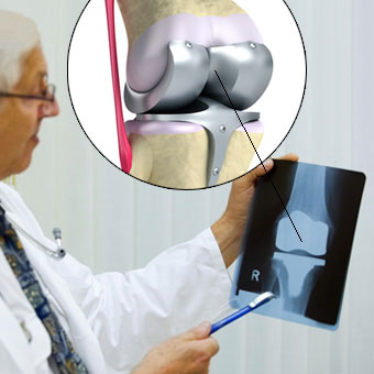 Model of a knee replacement with titanium hinge joint