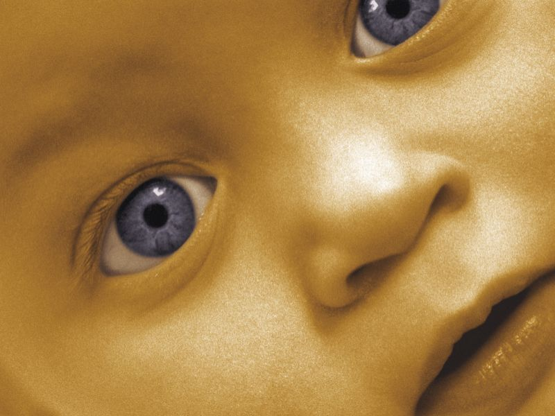 News Picture: Opioid Danger to Newborns Varies By Region
