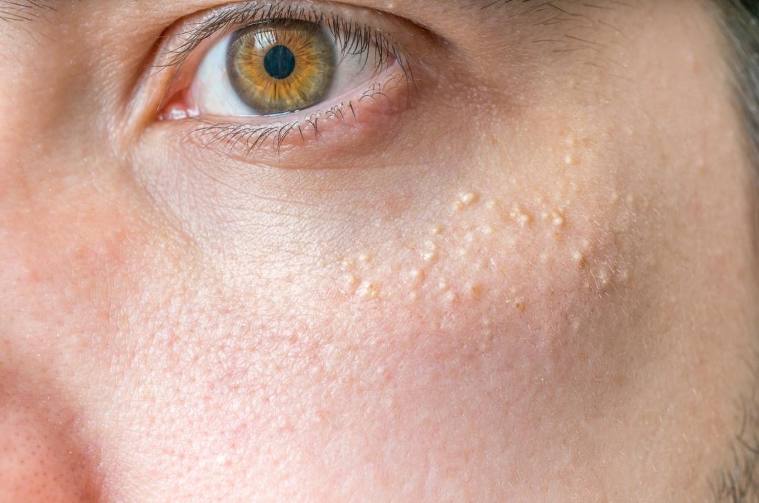 Milia causing raised white bumps on the skin.
