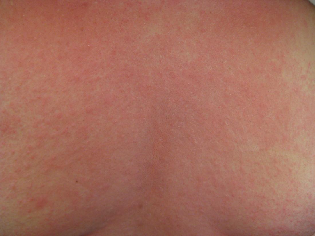anaphylaxis rash <br>Image credit: James Heilman, MD, 2009</br>