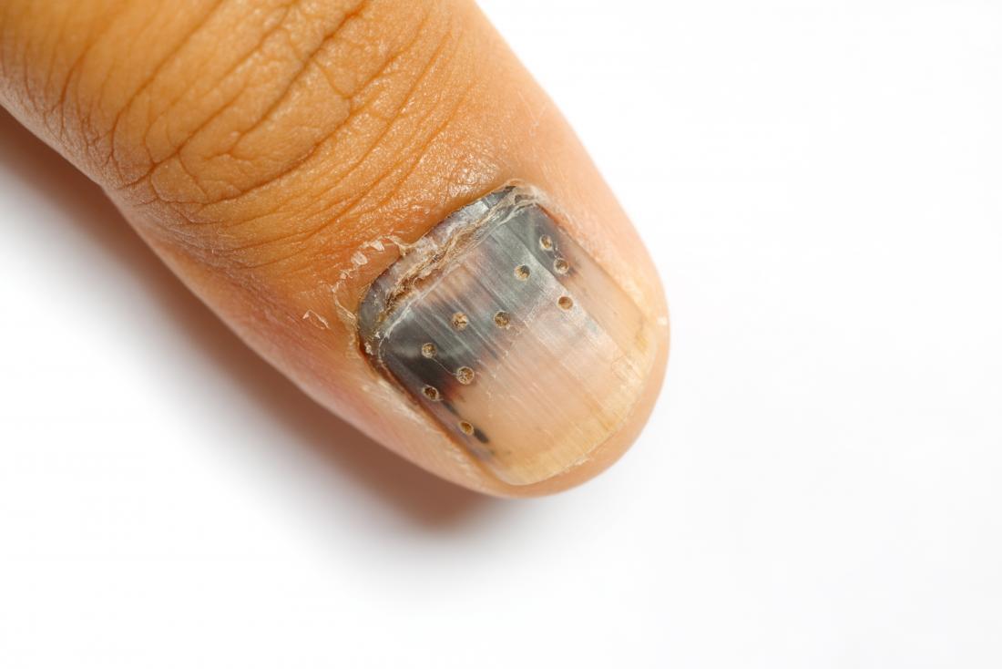 Subungual hematoma where doctor has drilled holes into nail