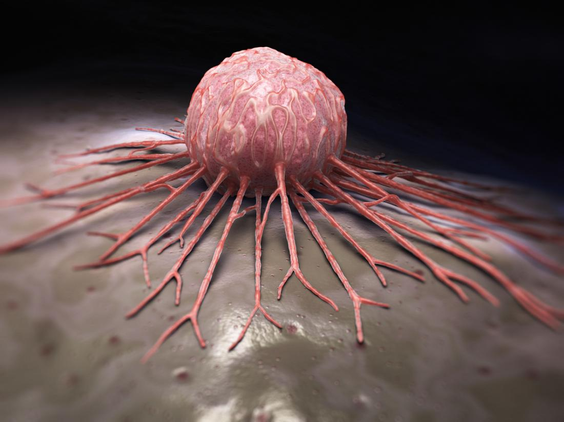 close view of a cancer cell