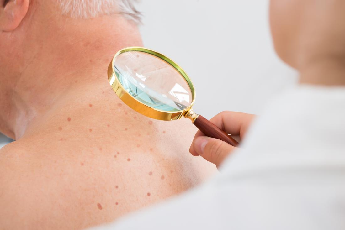 Person having moles on back inspected by dermatologist with magnifying glass to diagnose melanoma.