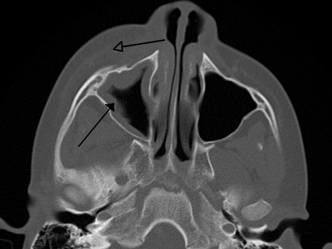 CT scan of orbital cellulitis. Image credit: James Heilman, MD, 2011.