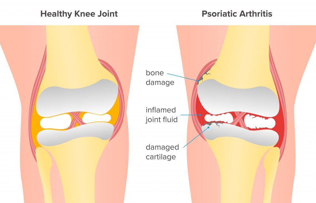 psoriatic arthritis of the knee