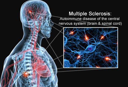 Multiple Sclerosis (MS) Symptoms and Treatment