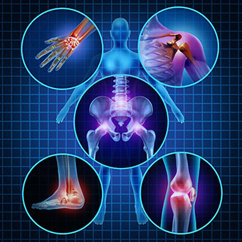A graphic illustration of various joint pain locations.