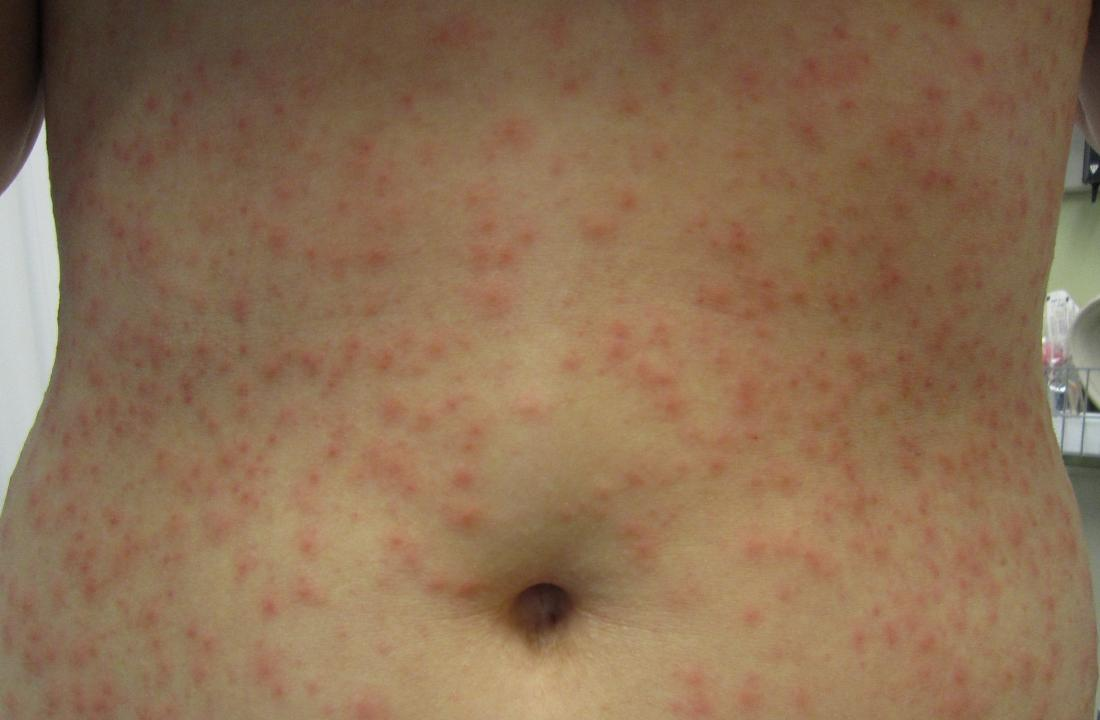 Hot tub folliculitis. Image credit: James Heilman, MD, 2013.