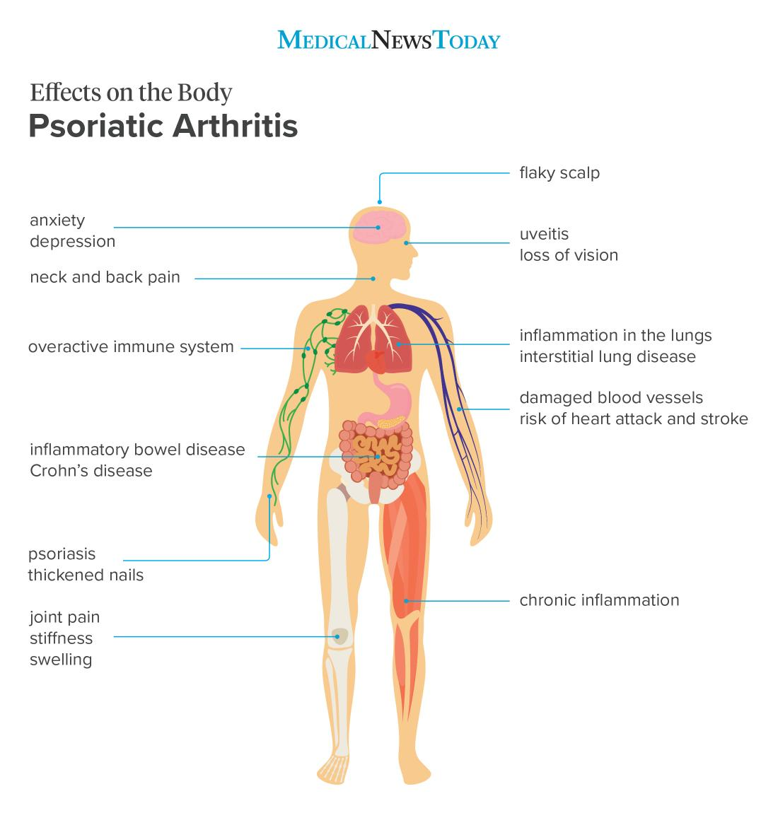 psoriatic arthritis effects on the body