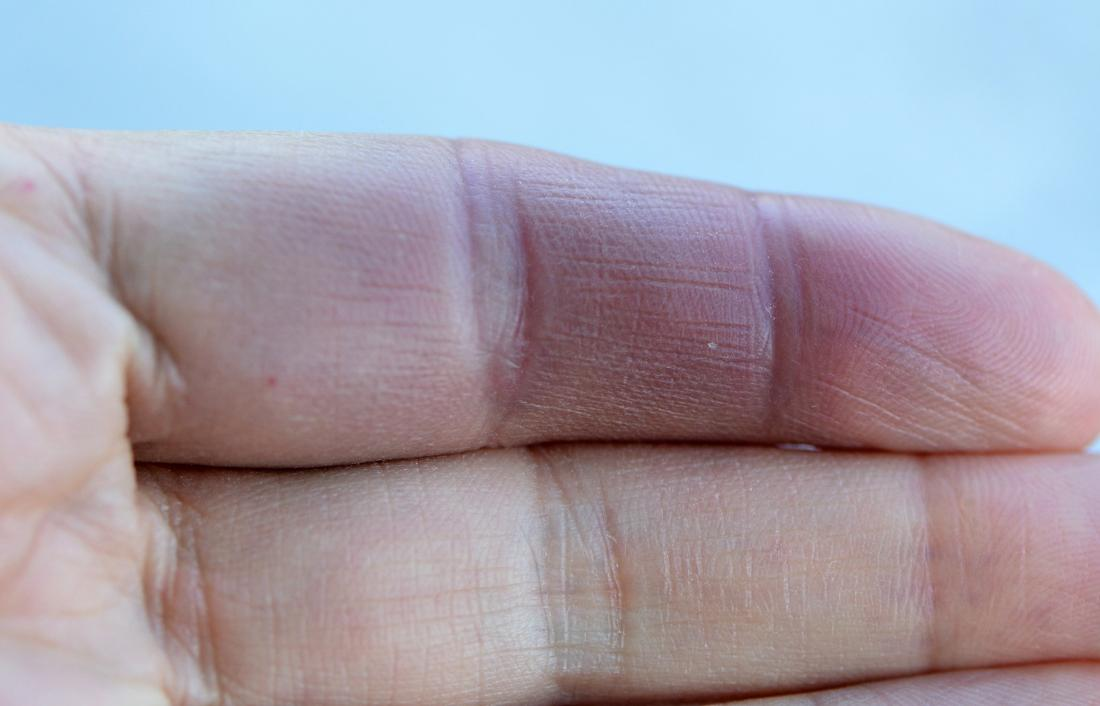 Paroxysmal hand hematoma causing red and swollen finger. Image credit: Lamiot, 2017.