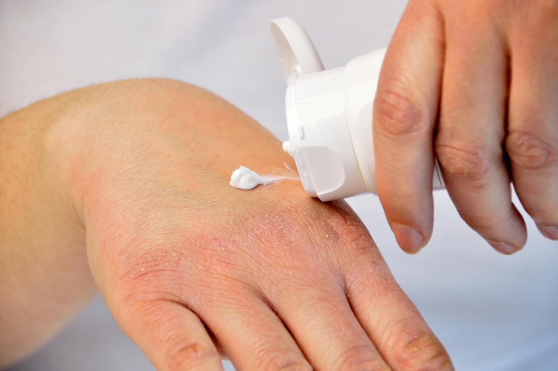 Person applying moisturiser from tube onto back of hand with dry skin.
