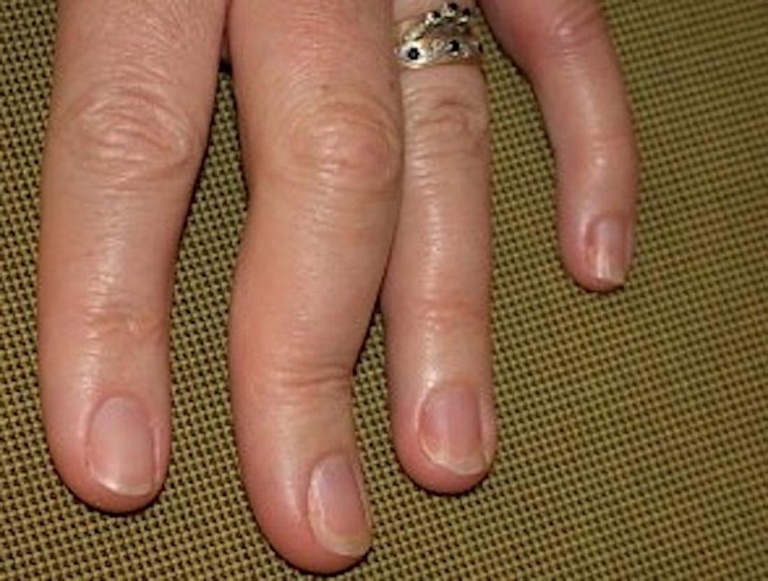 Psoriatic arthritis in fingers and hands