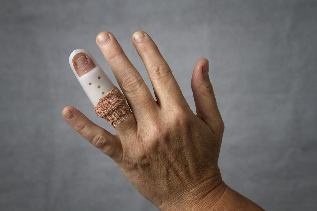 close up of hand with finger in splint
