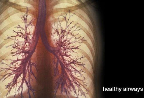 COPD Lung Symptoms, Diagnosis, Treatment