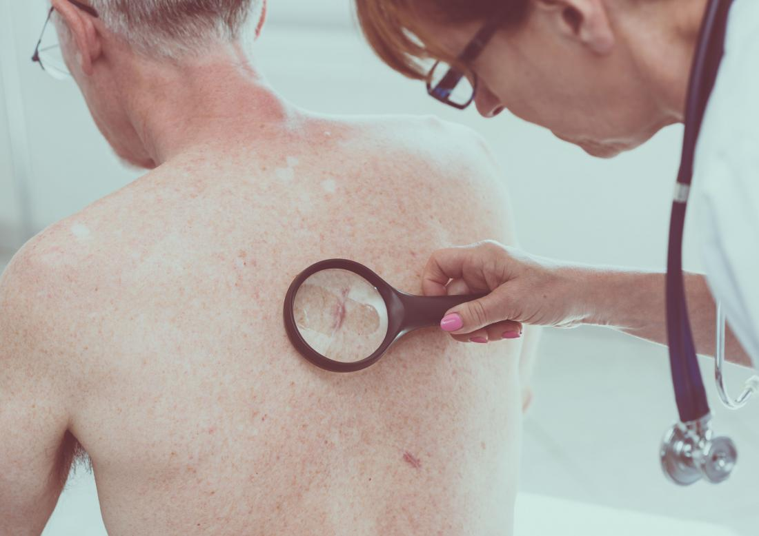 Doctor checking for melanoma