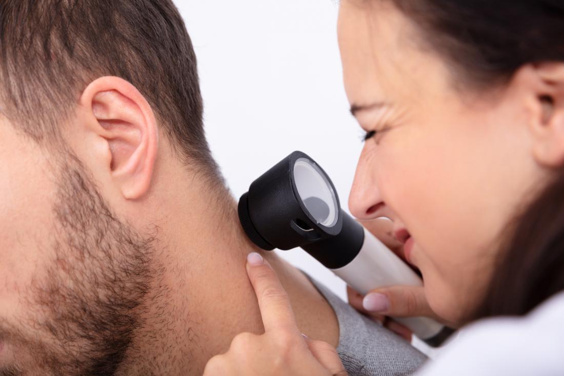 Doctor checking melanoma