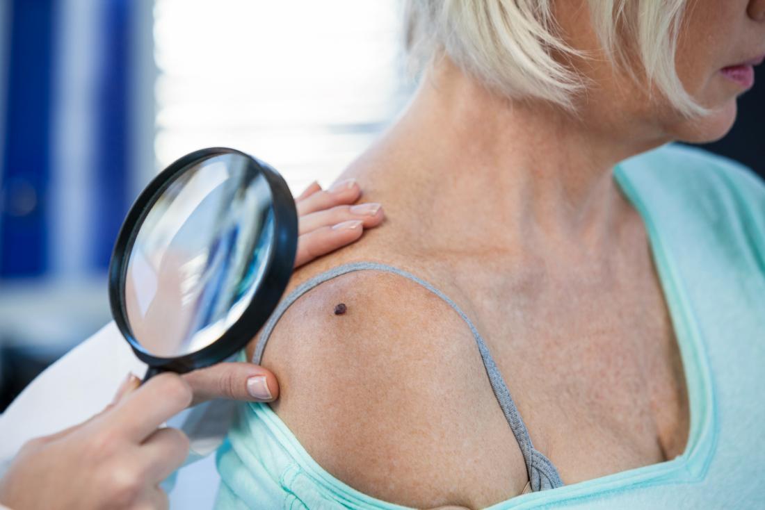 physician examining mole