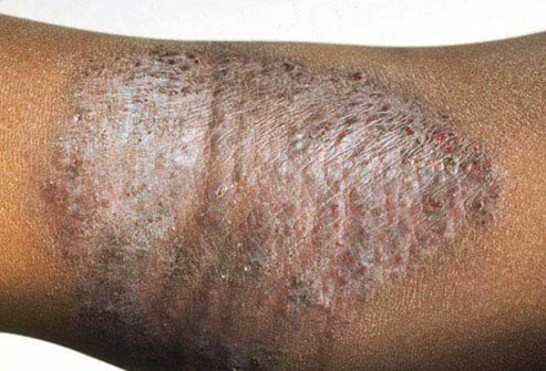 Eczema (Atopic Dermatitis) Causes, Symptoms, Treatment