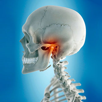 TMJ refers to the syndrome affecting the temporomandibular joint, where the jaw meets the skull.