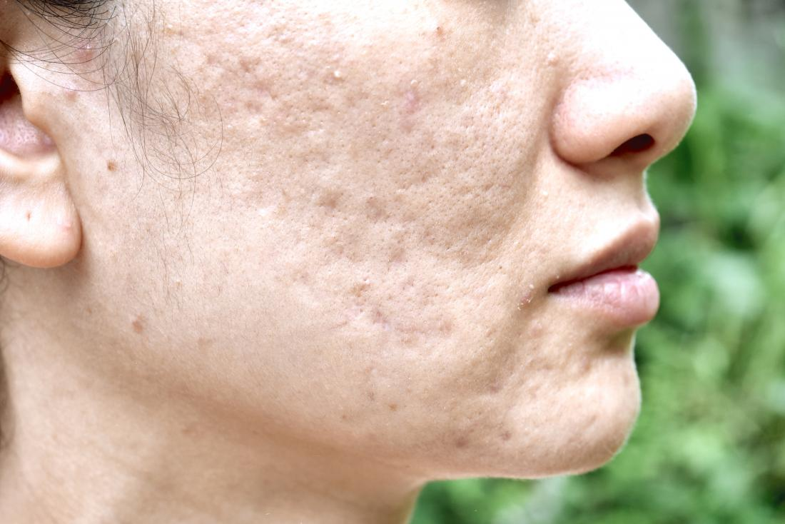Side profile of person with acne scars