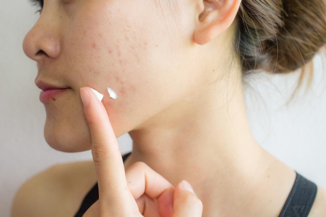 Woman with acne scars applying lotion, cream, or treatment to skin on face.