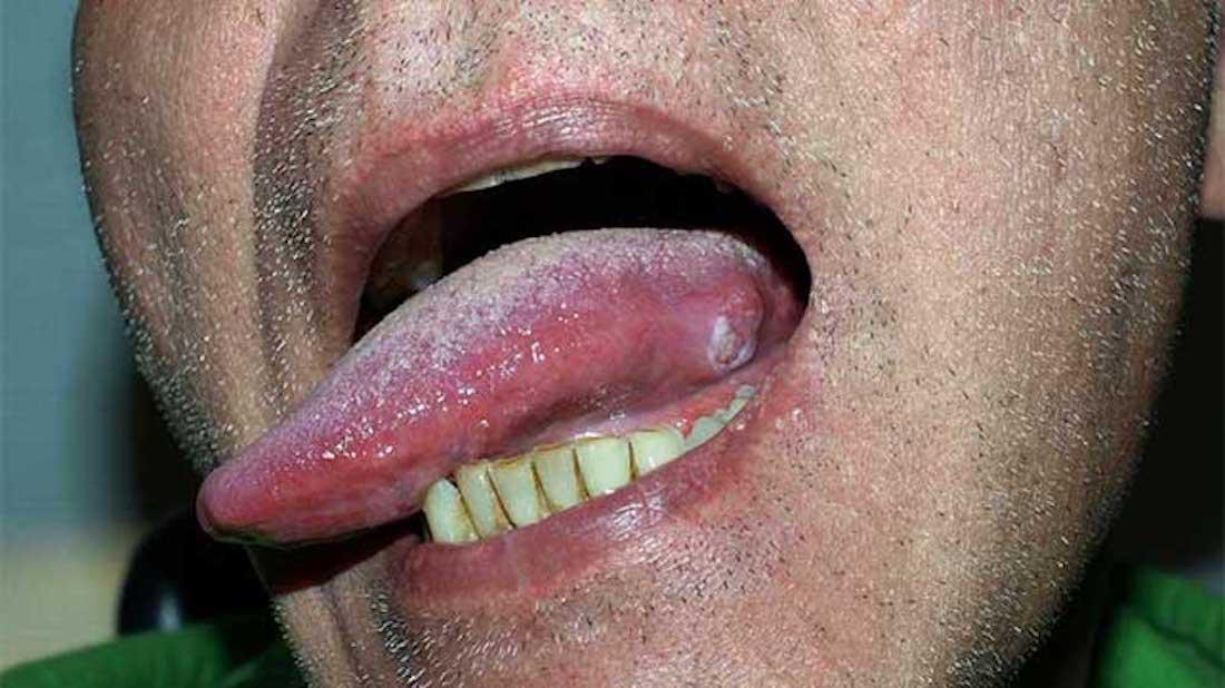 Squamous cell carinoma of the tongue
