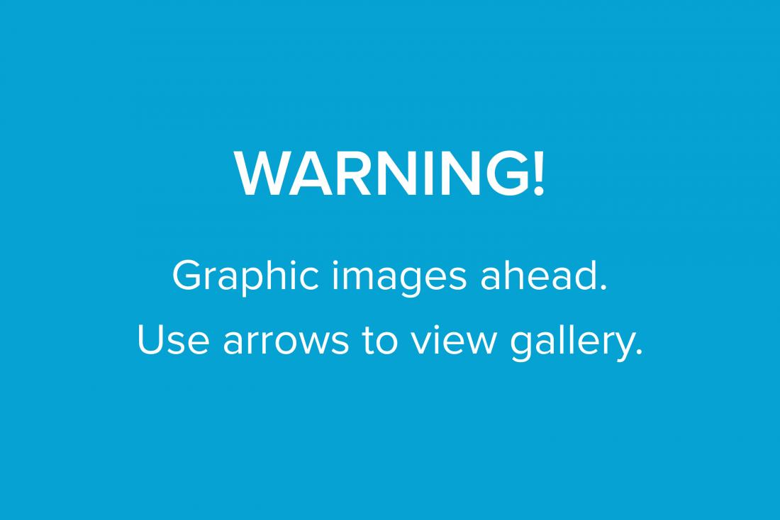 graphic image warning for carousel