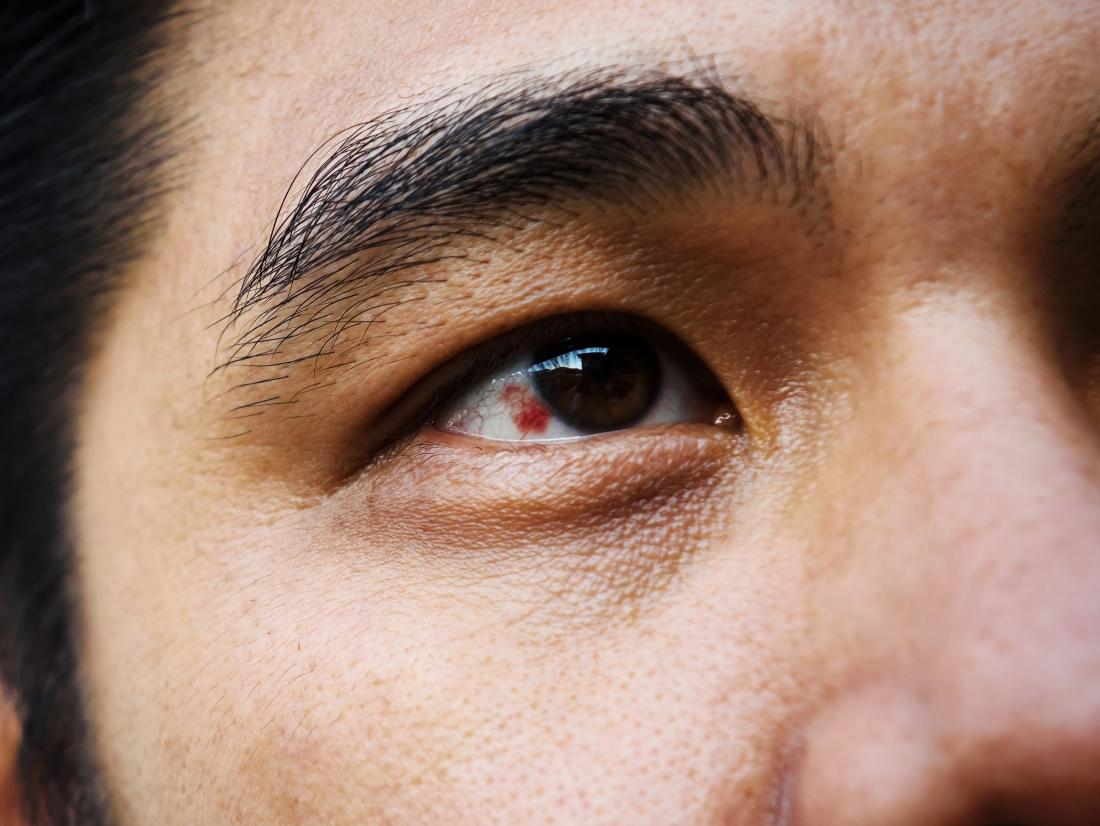 subconjunctival hemorrhage in a mans right eye