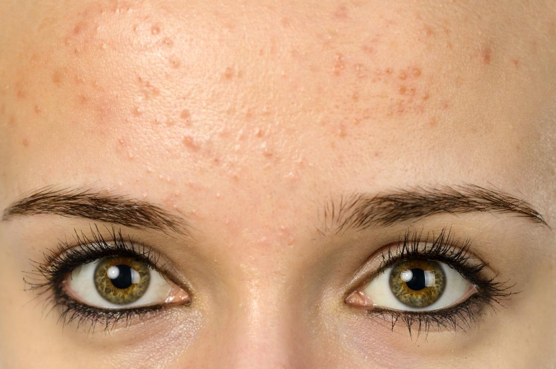 young woman with forehead acne
