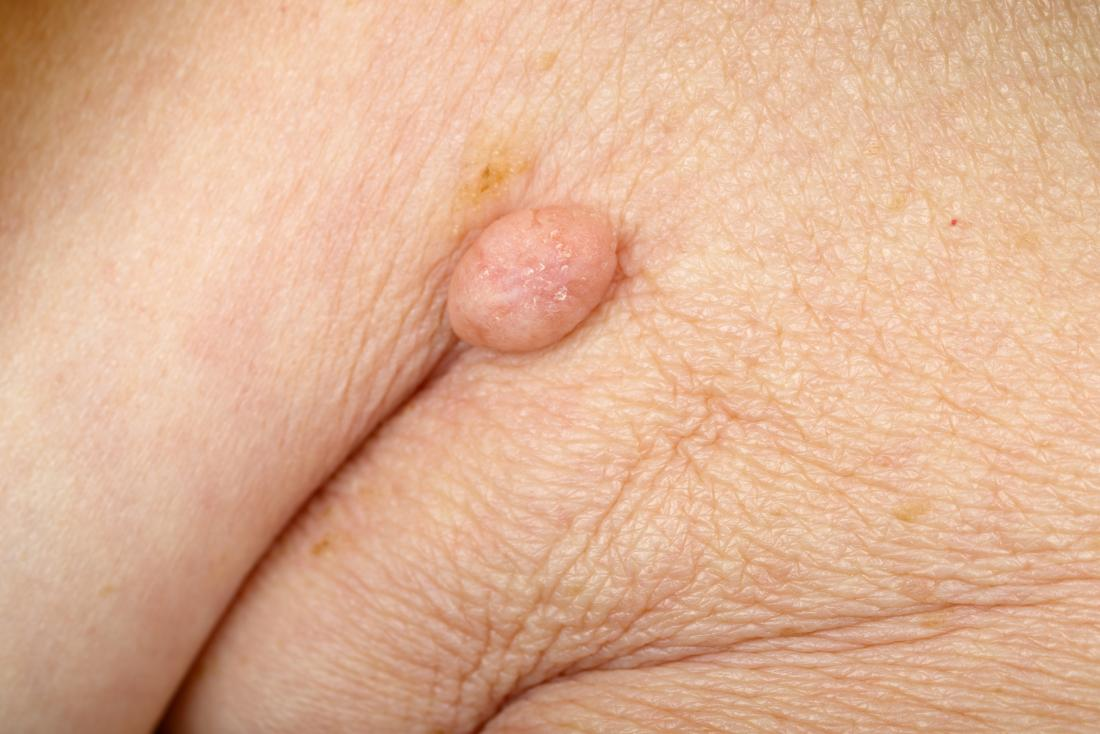 Wart on folded skin.