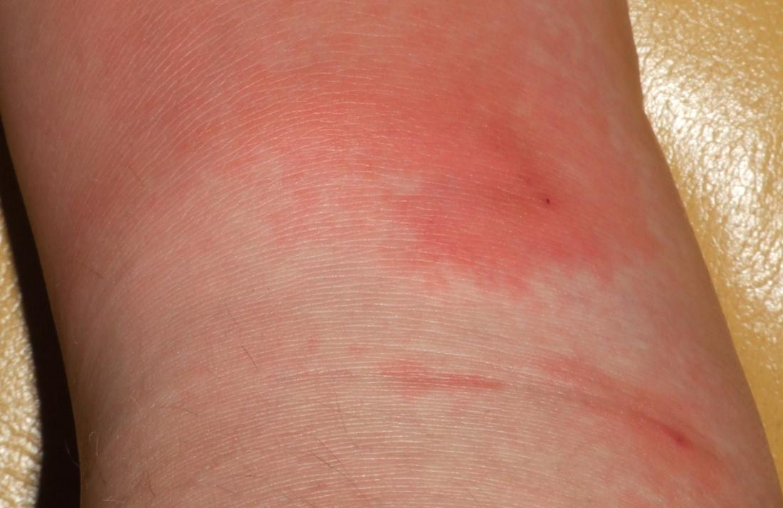 cellulitis on skin. Image credit: Poupou l'quourouce, 2006.