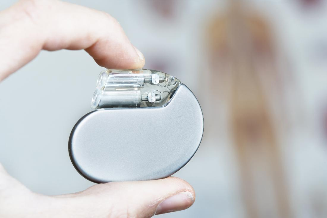 Close up image of a heart pacemaker