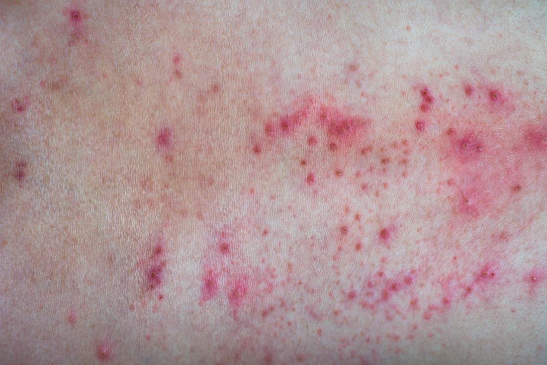 Red pimply rash on skin