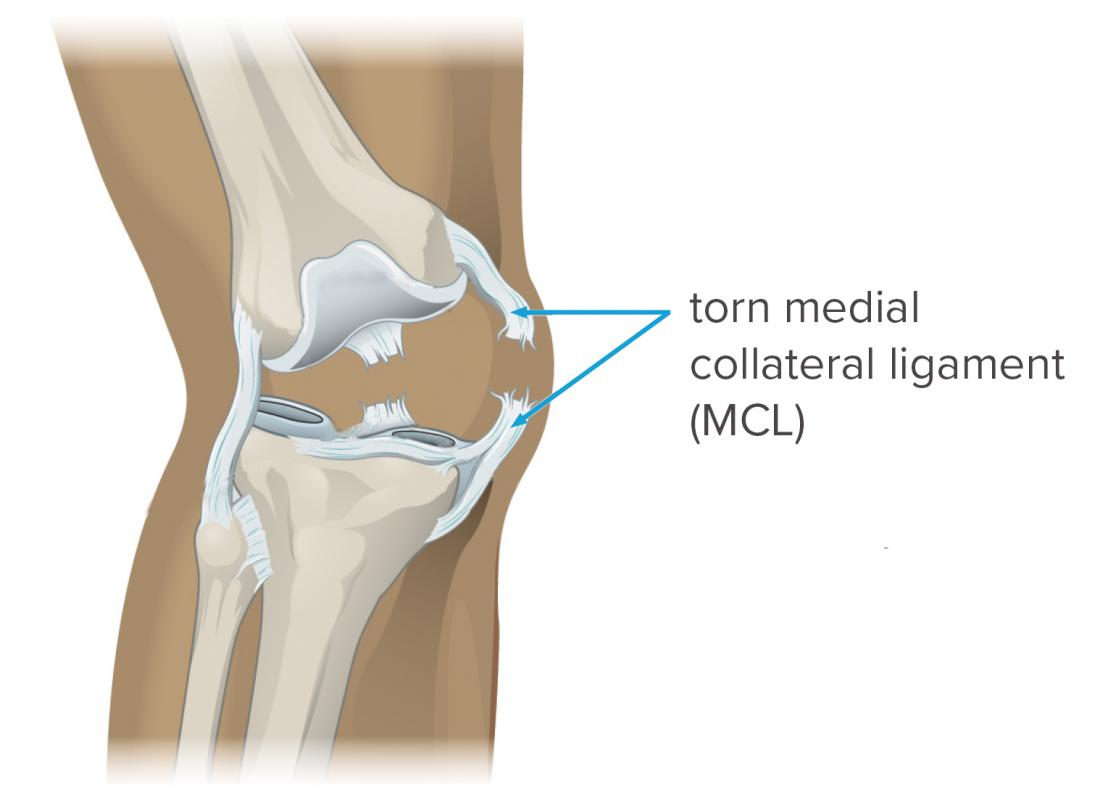 medial collateral ligament MCL tear picture