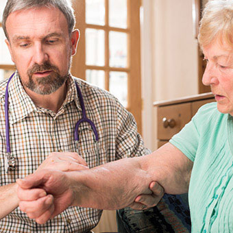 A doctor examines a patient for joint warmth, a symptom of active rheumatoid arthritis (RA) inflammation.