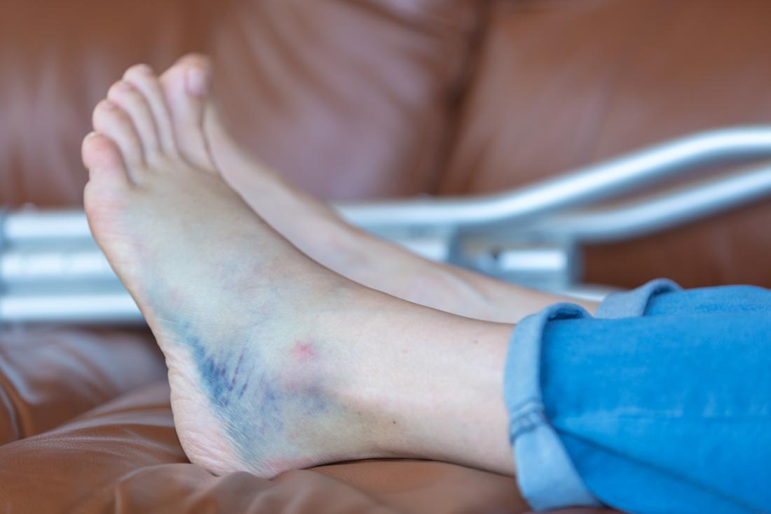 Bruise on heel