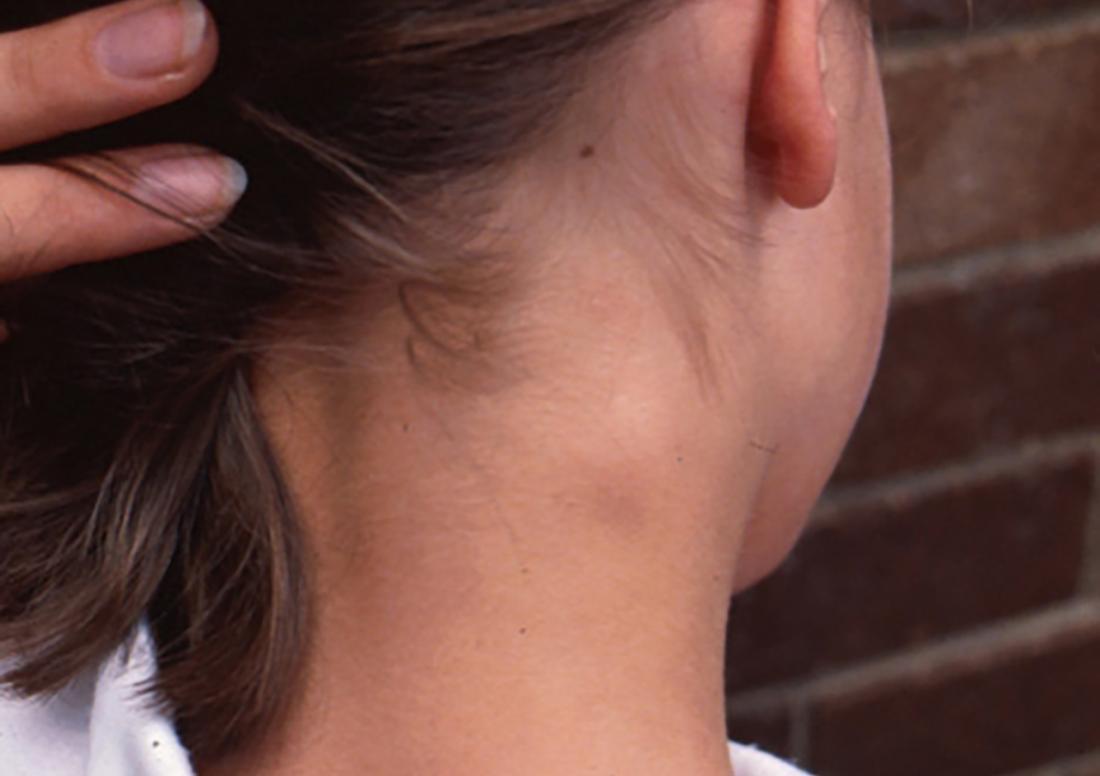 Swollen lymph nodes on back of neck. Image credit: Hudson, Bernard, 2010.