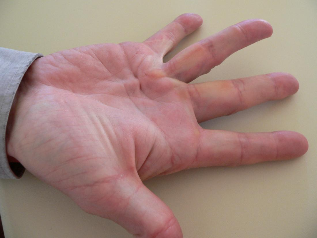 Dupuytren's contracture. Image credit: Frank C. Müller, 2006.
