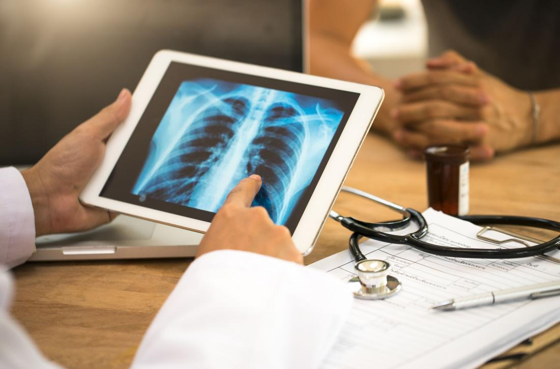 close up of physicians looking at a lung x-ray on a tablet